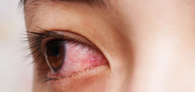 صورة العين الحمراء