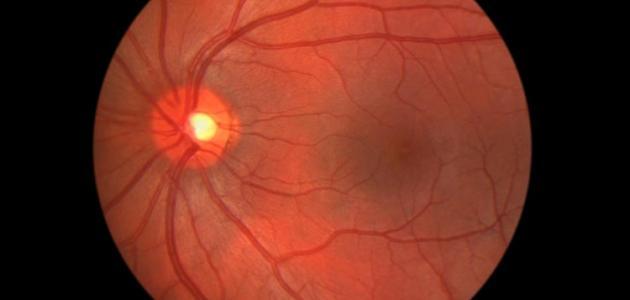 صورة التهاب العصب البصري