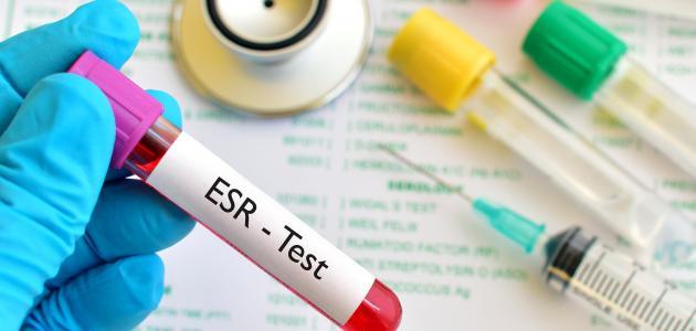 صورة ما هو تحليل ESR