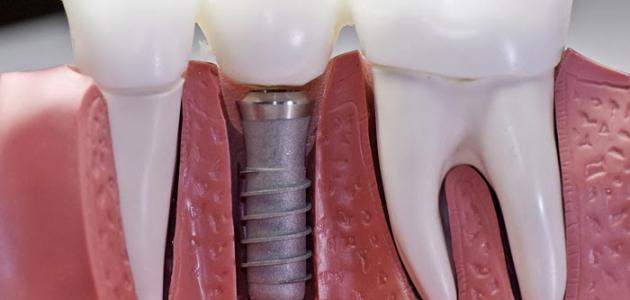 صورة ما هي زراعة الأسنان