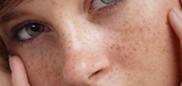 صورة إزالة النمش من الوجه نهائياً