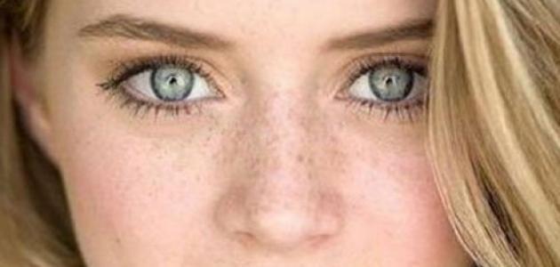 صورة كيفية إزالة النمش من الوجه