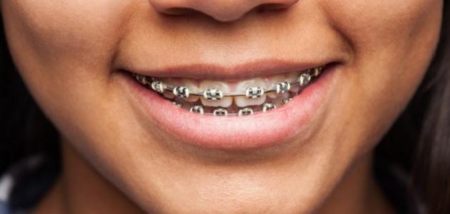 صورة كيفية إزالة تقويم الأسنان