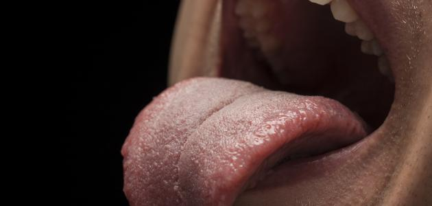صورة أمراض اللسان