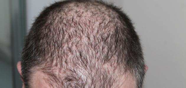 صورة ما سبب تساقط الشعر من مقدمة الرأس