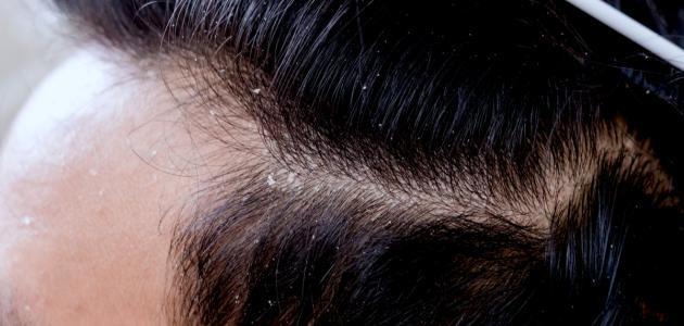 صورة ما هي قشرة الرأس