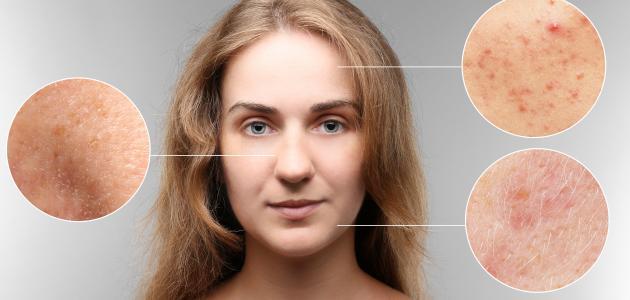 صورة كيفية التخلص من بقع حب الشباب في الوجه