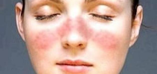 صورة ما علاج قشرة الوجه