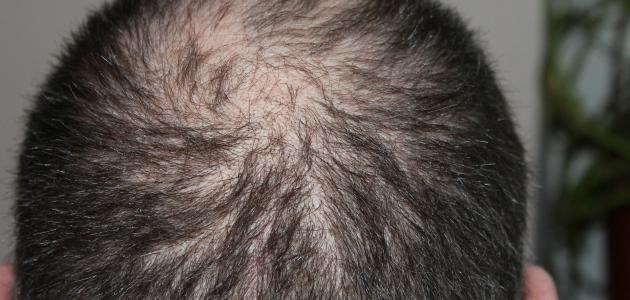 صورة ما سبب تساقط الشعر عند الرجال