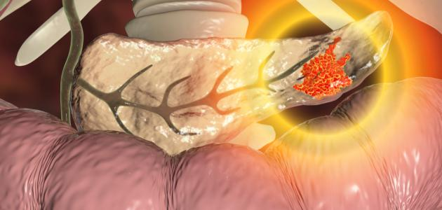 صورة سرطان البنكرياس وعلاجه