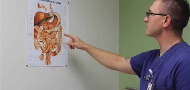 صورة أعراض القولون العصبي الشديدة