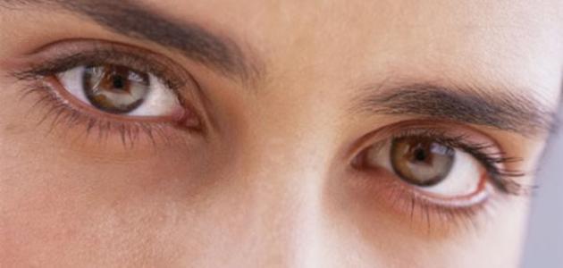 صورة أعراض انسداد مجرى الدمع