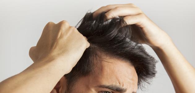 صورة أسباب ظهور قشرة الشعر وعلاجها