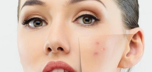 صورة إزالة آثار الحبوب من الوجه بسرعة