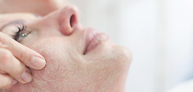 صورة كيفية التخلص من القشرة في الوجه