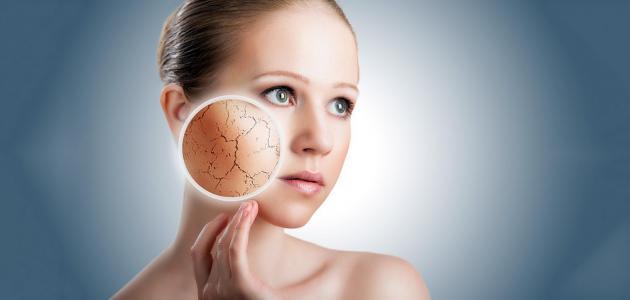 صورة علاج طبيعي لجفاف الوجه