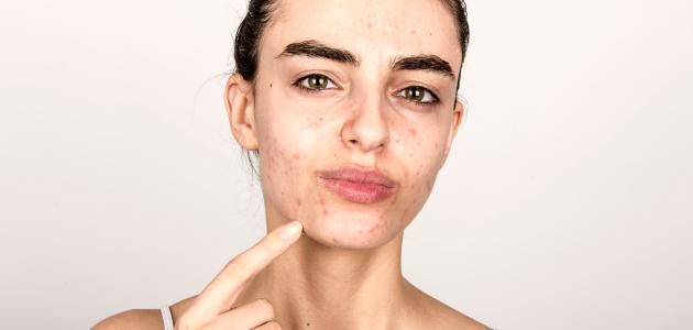 صورة كيفية القضاء على بثور الوجه