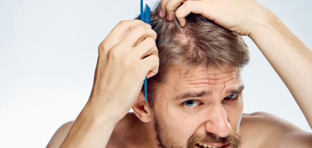 صورة طريقة إعادة إنبات الشعر للرجال