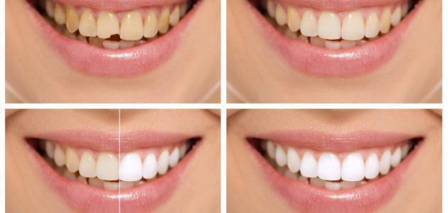 صورة كيف أبيض أسناني في أسبوع