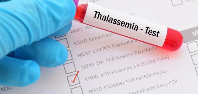 صورة تحليل الثلاسيميا