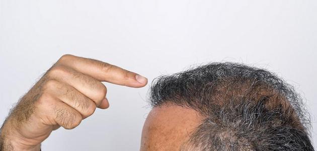 صورة كيفية المحافظة على الشعر من التساقط للرجال