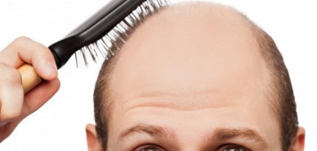 صورة كيف تعالج تساقط الشعر عند الرجال