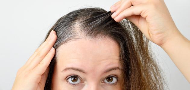 صورة ما سبب تساقط الشعر من الأمام