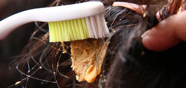 صورة طريقة إزالة اللبان من الشعر