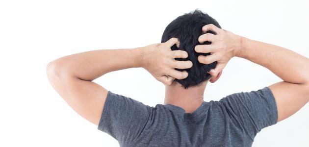 صورة أضرار حك فروة الرأس