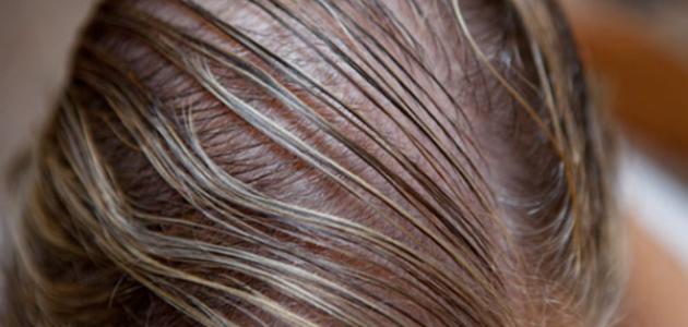 صورة كيفية علاج الشعر الخفيف