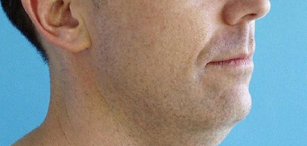 صورة كيف أتخلص من دهون الوجه